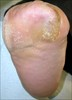 Foot_Ulcer_after
